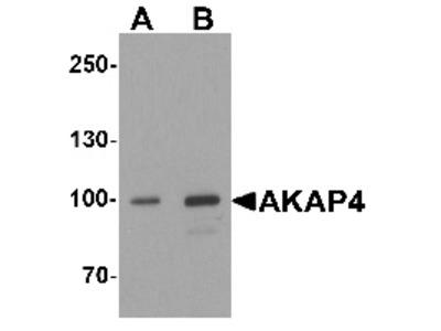 Rabbit Polyclonal Anti-AKAP4 Antibody