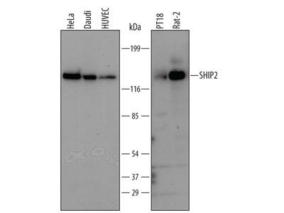 IL-10 R beta Antibody