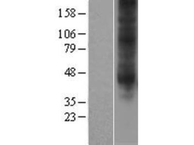 Transient overexpression lysate of adenosine A3 receptor (ADORA3), transcript variant 2