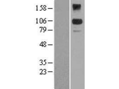 Transient overexpression lysate of BTB and CNC homology 1, basic leucine zipper transcription factor 2 (BACH2), transcript variant 1