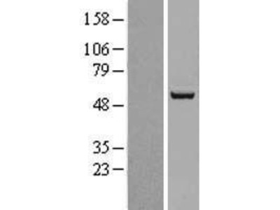 Transient overexpression lysate of acyl-CoA synthetase family member 2 (ACSF2)