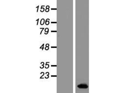Transient overexpression lysate of bladder cancer associated protein (BLCAP), transcript variant 1