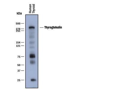 Thyroglobulin Antibody