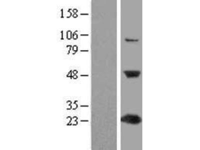 Transient overexpression lysate of chromosome 1 open reading frame 50 (C1orf50)