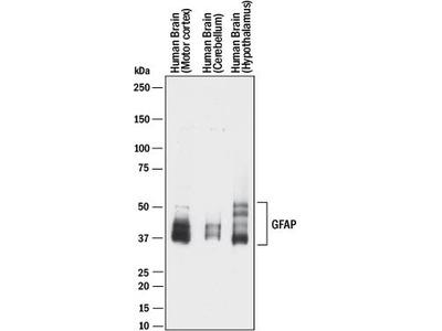 GFAP Antibody