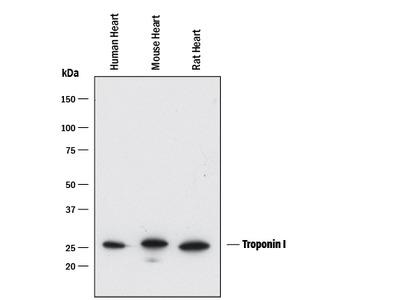 Troponin I Antibody