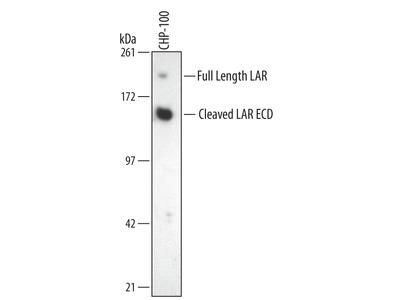 HIF-2 alpha /EPAS1 Antibody