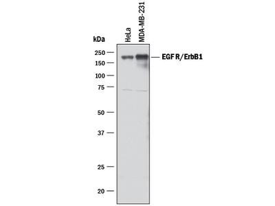 IL-4R alpha Antibody