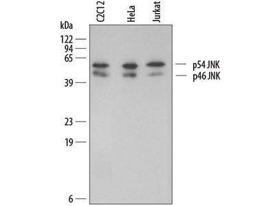 IL-6R alpha Antibody