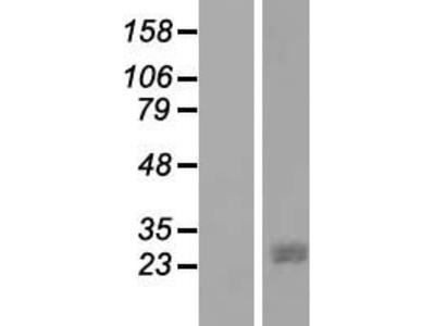 Transient overexpression lysate of JAZF zinc finger 1 (JAZF1)