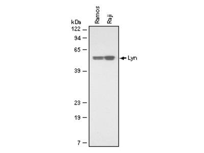 IKK epsilon Antibody