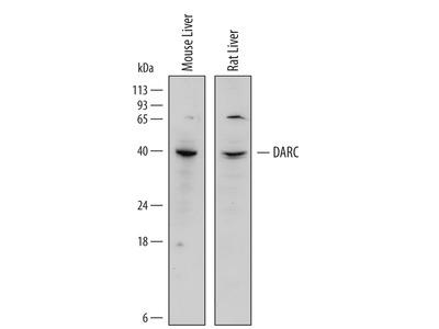 NM23-H2 Antibody