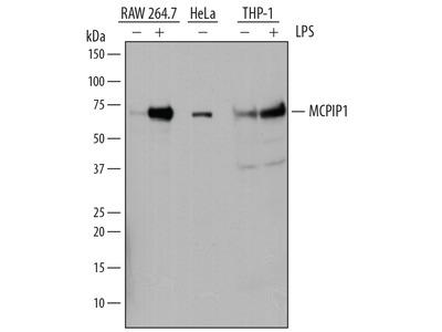 Collybistin /ARHGEF9 Antibody