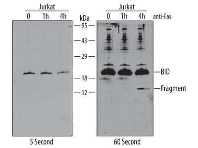 LEKTI /SPINK5 Antibody