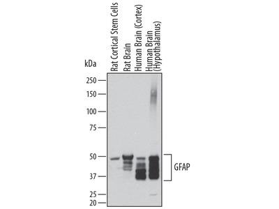 Human / Rat GFAP Antibody