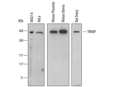 Supervillin Antibody