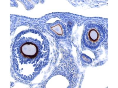 Cytosolic Sulfotransferase 1A1 /SULT1A1 Antibody
