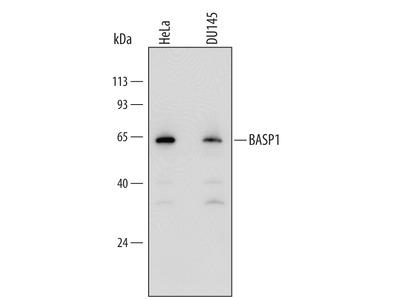 beta-Galactosidase-1 /GLB1 Antibody