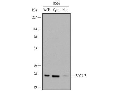 Collectrin Antibody