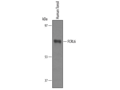 IRAK3 Antibody