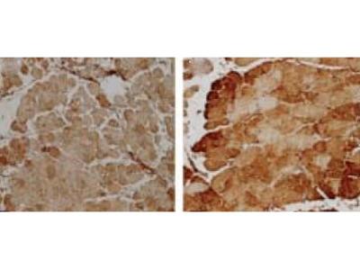 anti-SOD2 Antibody