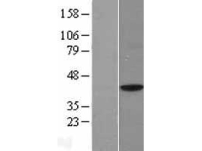 Transient overexpression lysate of transcription factor B1, mitochondrial (TFB1M), nuclear gene encoding mitochondrial protein