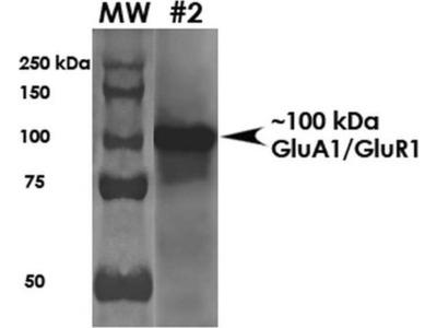 anti-GRIA1 Antibody