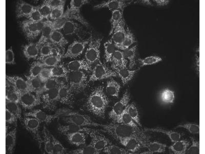anti-HSPD1 Antibody