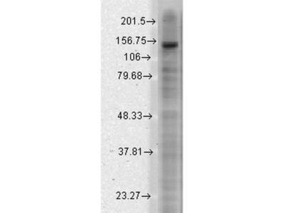 anti-KCNT2 Antibody
