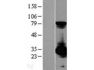 Transient overexpression lysate of proteasome (prosome, macropain) activator subunit 1 (PA28 alpha) (PSME1), transcript variant 1