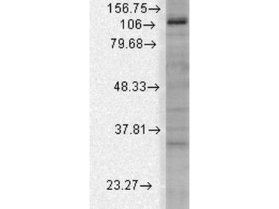 anti-Potassium Channel, Subfamily U, Member 1 (KCNU1) (AA 1052-1121) antibody (HRP)