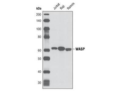 WASP (D9C8) Rabbit mAb