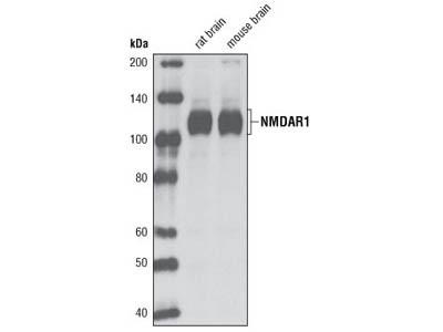 NMDA Receptor 1 (GluN1) (D65B7) Rabbit mAb