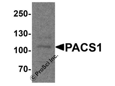 PACS1 Antibody