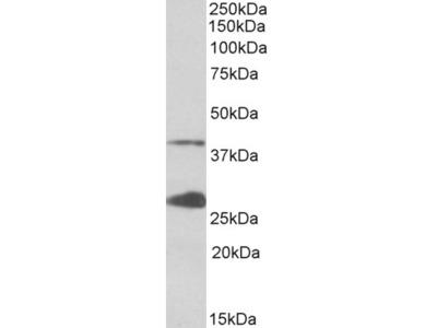 UROD Antibody