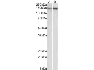 ITGB1 / CD29 Antibody