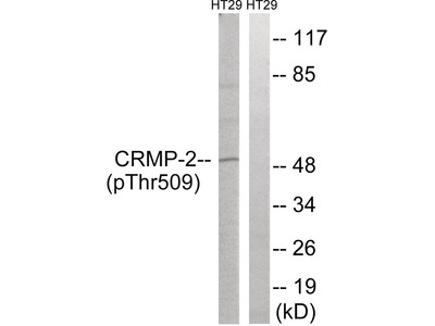 CRMP-2 (phospho Thr509) Antibody