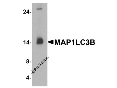 Clone Anti-LC3B, MAP1LC3, ATG8F Antibody Products from ProSci, Inc