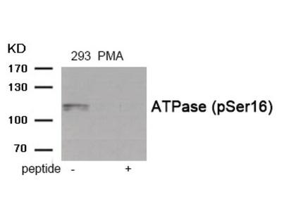 ATPase (phospho Ser16) Antibody