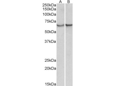 alpha-1-antichymotrypsin Antibody