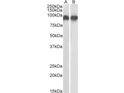 ITGB2 / LFA-1 Antibody