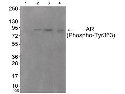 Androgen Receptor (phospho Tyr363) Antibody