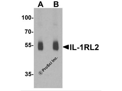 IL-1RL2 Antibody
