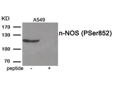 n-NOS (phospho Ser852) Antibody