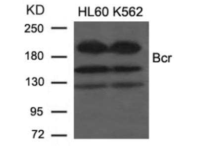 Bcr (Ab 177) Antibody