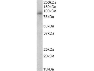 myeloperoxidase Antibody