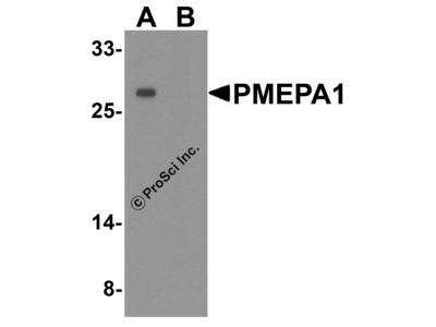PMEPA1 Antibody