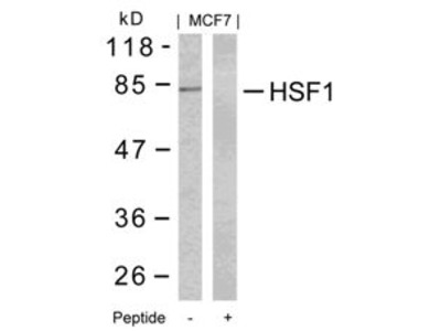HSF1 (Ab 303) Antibody