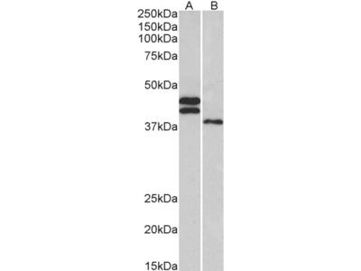 FCRL1 Antibody