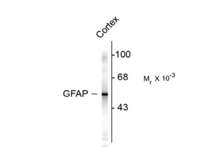 Glial Fibrillary Acidic Proetin (GFAP) Antibody